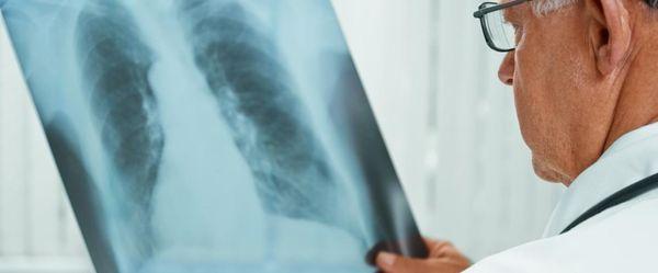 Жительницу Тольятти принудительно уложили лечиться от туберкулеза | CityTraffic