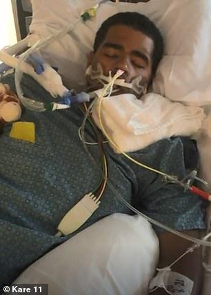Студент из Америки, который курил электронные сигареты, попал в больницу и подключен к аппарату ИВЛ | CityTraffic