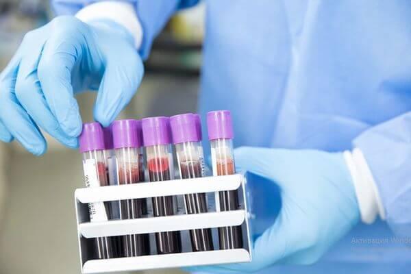 В Самарской области  к 7 апреля снова не зафиксировано новых случаев коронавируса | CityTraffic