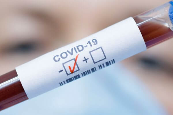 В Самарской области за сутки выявили 47 заболевших коронавирусом, один пациент скончался | CityTraffic