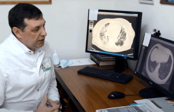 В Медгородке Тольятти показали, как выглядят легкие пациентов с коронавирусной инфекцией: видео | CityTraffic