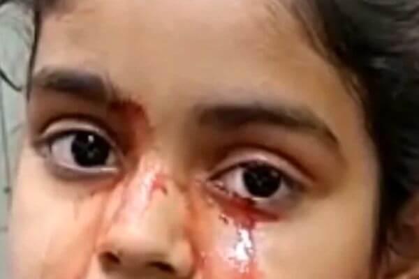 Врачи не в силах объяснить, почему 11-летняя девочка плачет кровавыми слезами | CityTraffic